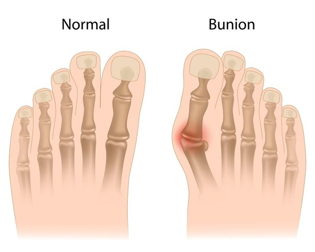 Comparison of foot with and without bunion