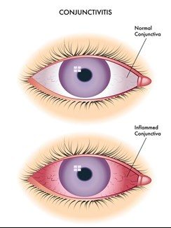 image of a normal eye and an eye with conjunctivitis