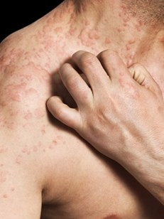 image of itchy hives rash
