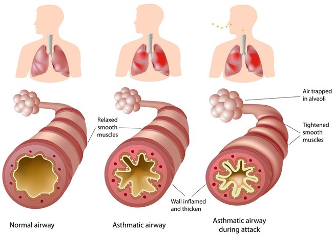 Diagram showing asthma