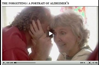 Alzheimer's disease – explained