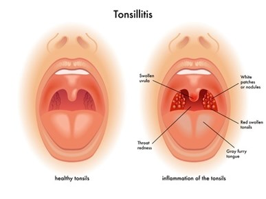 Image result for Tonsillectomy