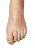 image of fungal toe nail infection