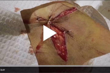 Wound closure – advanced suturing