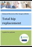 Total hip replacement patient guide