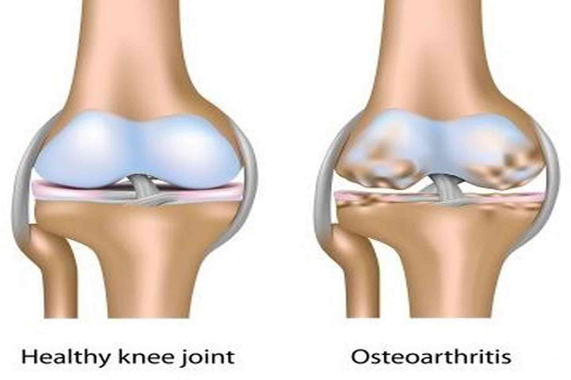 Image result for osteoarthritis