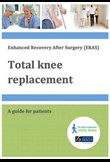 Total knee replacement – patient guide