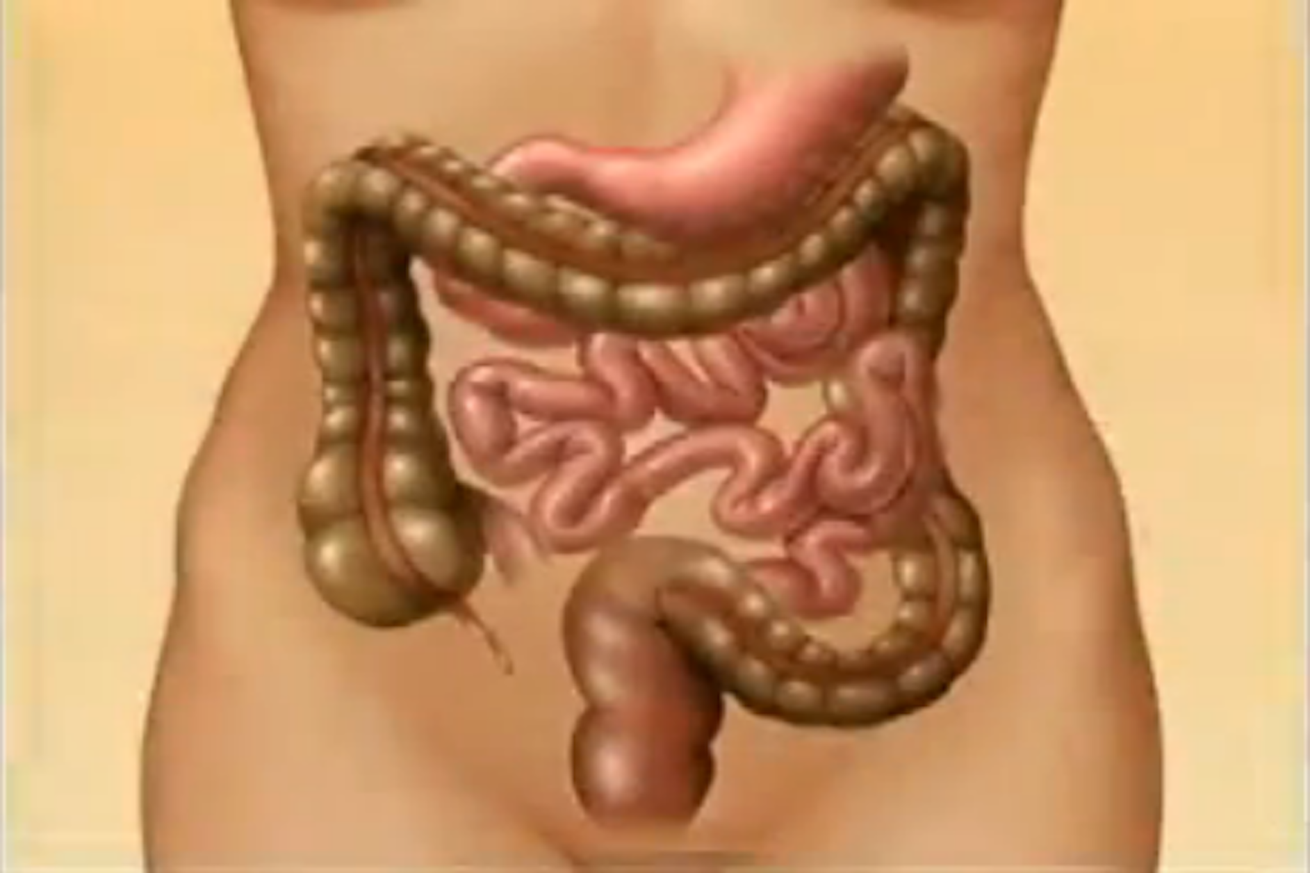 Irritable bowel syndrome – explained