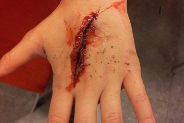 Skin lacerations and incisional wounds