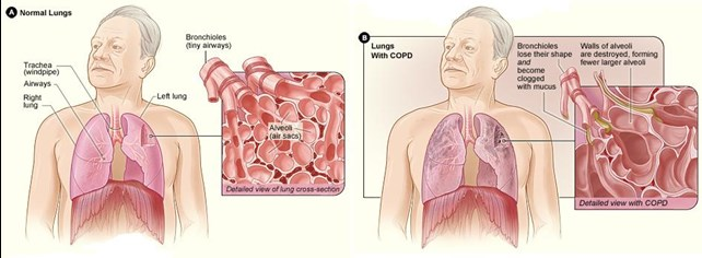 normal lungs compared to lungs with COPD