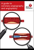 A guide to coronary angiography & angioplasy