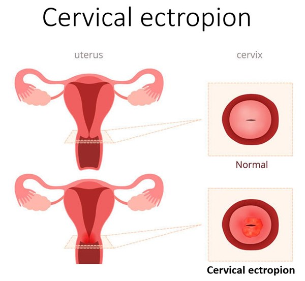 graphic of a cervical ectropion