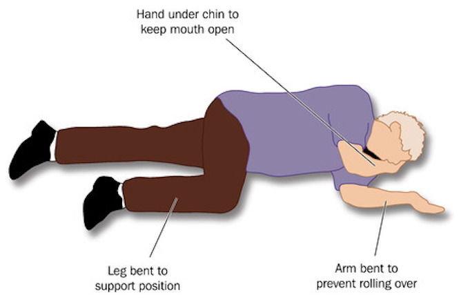 Recovery position   Health Navigator New Zealand