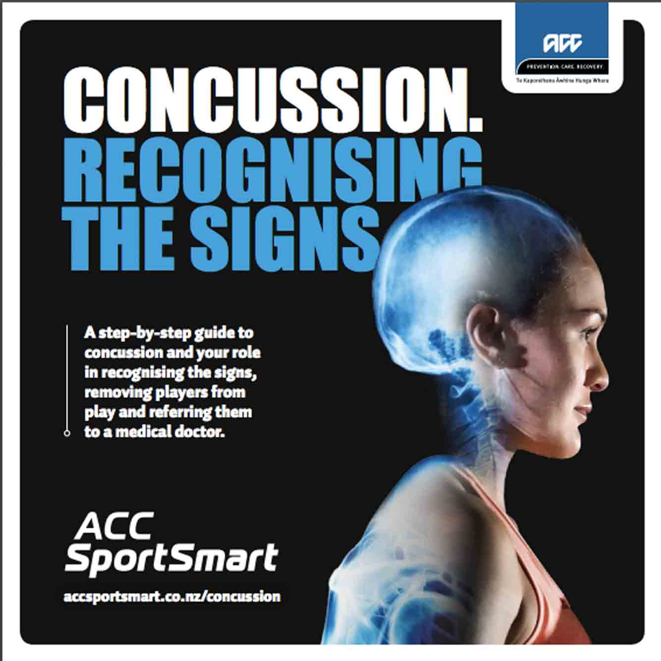 Concussion – recognising the signs