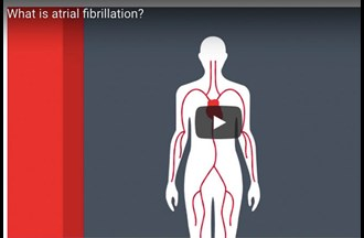 Atrial fibrillation & checking your pulse