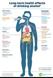 Long term effects of drinking alcohol