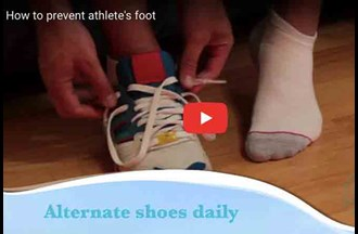 Athlete's foot – prevention