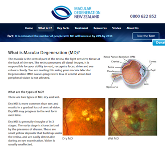 What is Macular Degeneration a.k.a MD
