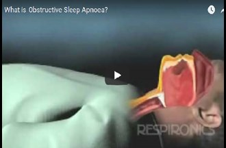 Obstructive sleep apnoea (OSA) – explained