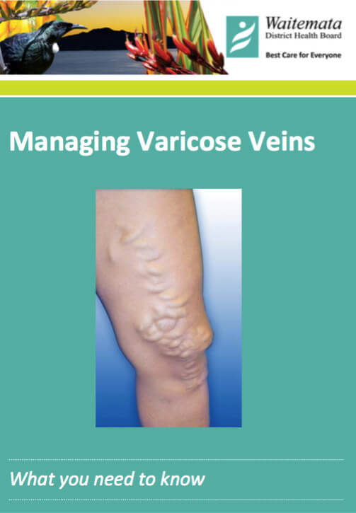 Varicose veins – management
