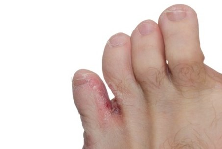 athlete's foot infection small toe