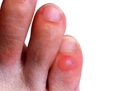 blister on small toe