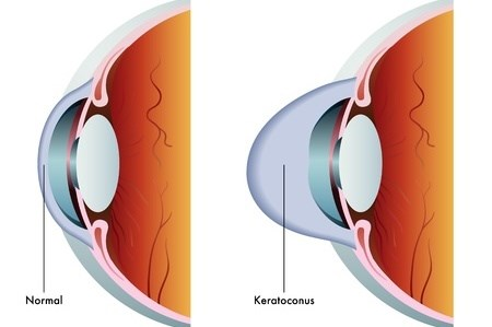image of a normal eye and cornea compared to an eye with keratoconus