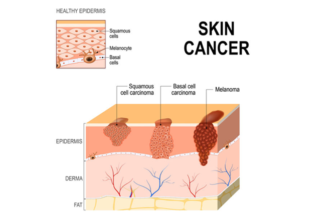 Squamous Cell Carcinoma Scc Health Navigator Nz