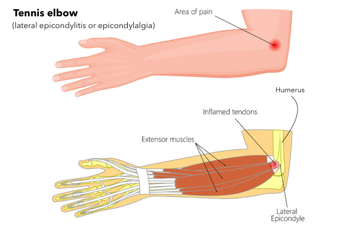 Pain in back of arm between shoulder and elbow