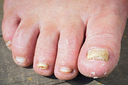 Images of fungal nail infection