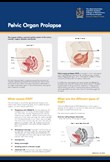 Pelvic organ prolapse patient information