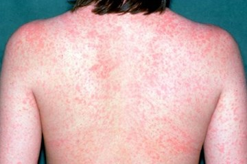 Measles outbreak: Important advice for travellers to Pacific Islands