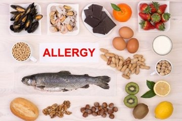 Allergies due to food